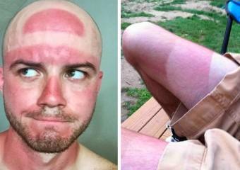 Солнце вас любит: 25 фото о неудачном летнем загаре