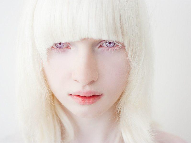 внешнее сходство альбиносы люди красивые фото день